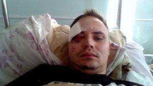 Избил парень все лицо в синяках дадут ли травмпункте больничный
