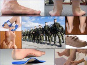 Плоскостопие берут ли в армию 2017 году